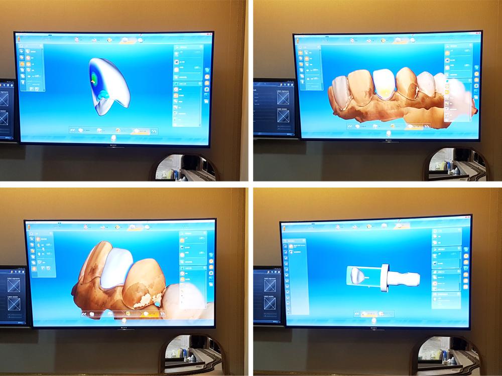 悅庭牙醫全瓷冠瓷牙貼片導引式植牙微笑曲線25.jpg