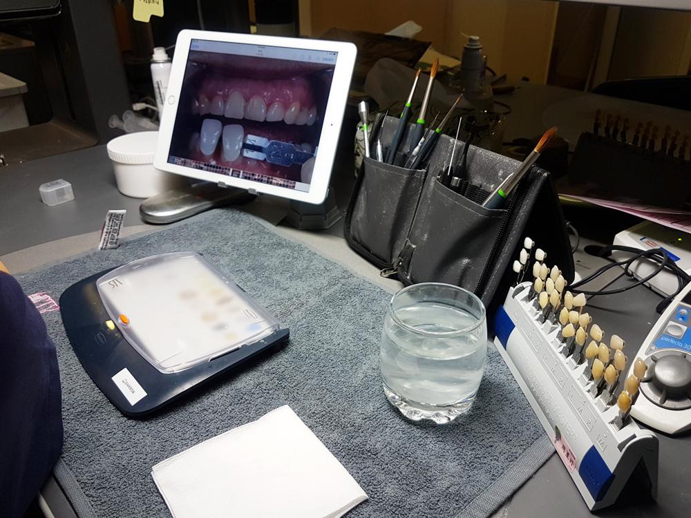 悅庭牙醫全瓷冠瓷牙貼片導引式植牙微笑曲線28.jpg