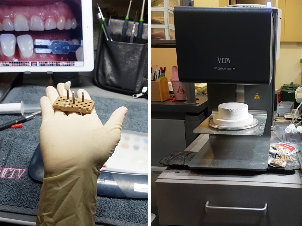 悅庭牙醫全瓷冠瓷牙貼片導引式植牙微笑曲線30.jpg