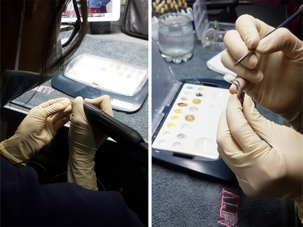 悅庭牙醫全瓷冠瓷牙貼片導引式植牙微笑曲線29.jpg