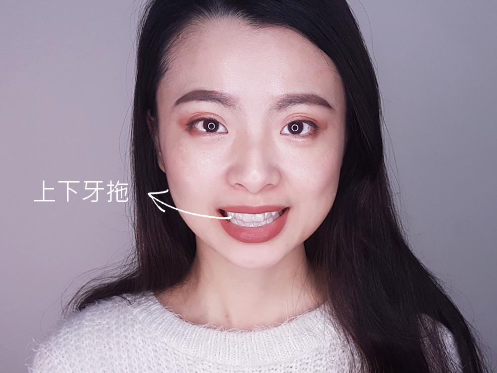 台北士林悅庭牙醫診所-牙齒美白居家美白雷射美白34.jpg