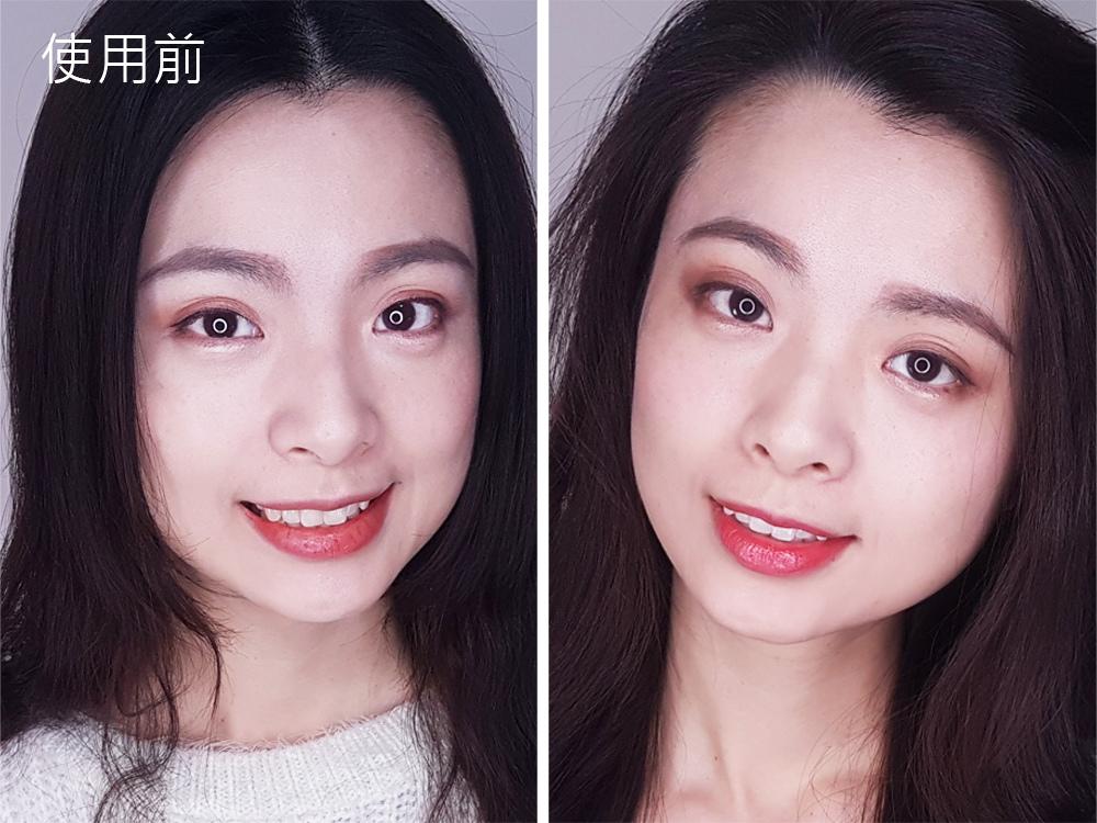 台北士林悅庭牙醫診所-牙齒美白居家美白雷射美白40.jpg