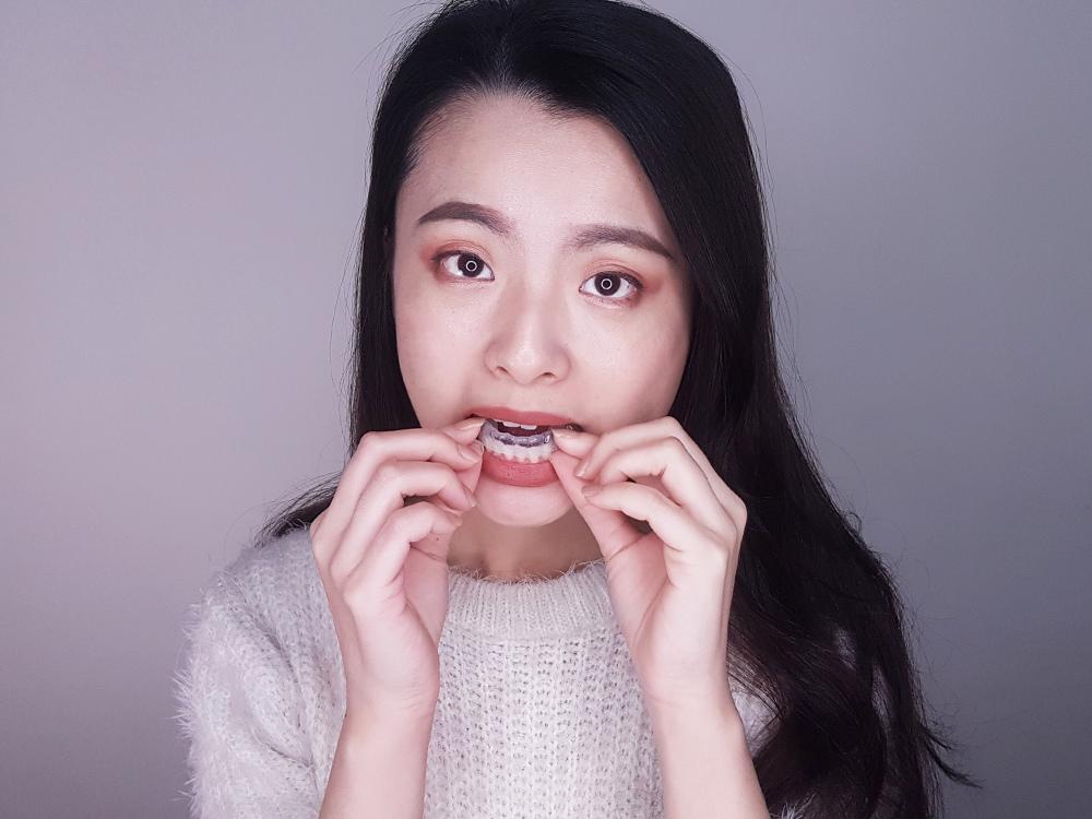 台北士林悅庭牙醫診所-牙齒美白居家美白雷射美白32.jpg
