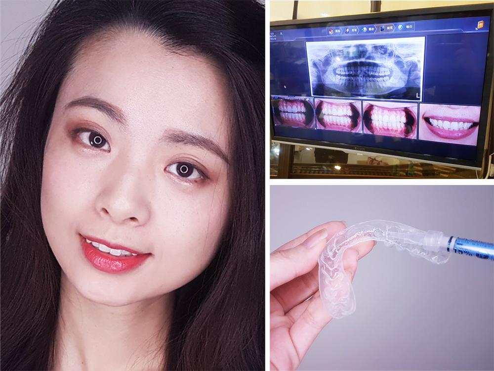 台北士林悅庭牙醫診所-牙齒美白居家美白雷射美白1.jpg