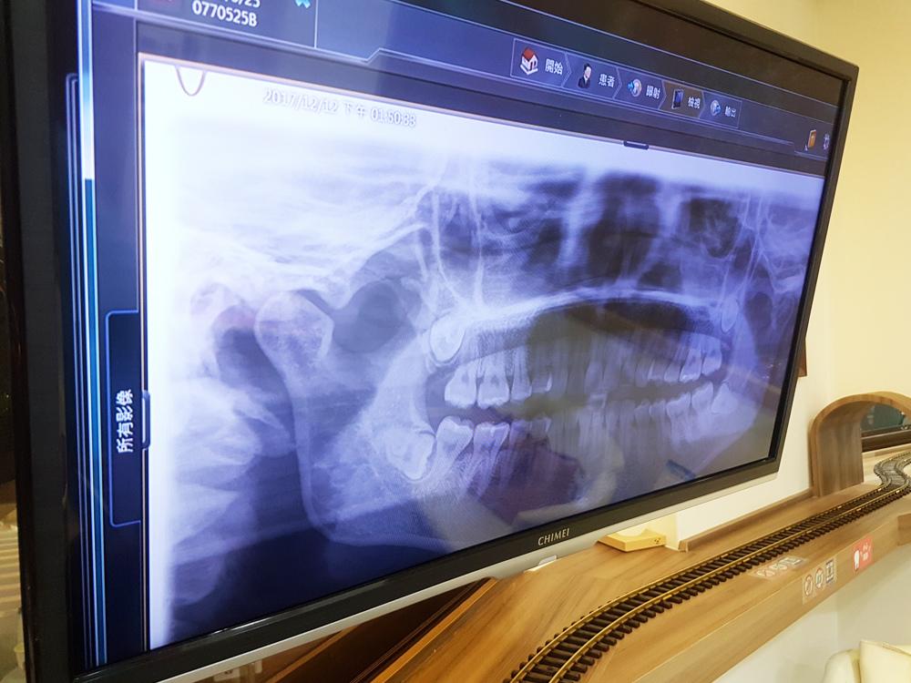 台北士林悅庭牙醫診所-牙齒美白居家美白雷射美白7.jpg