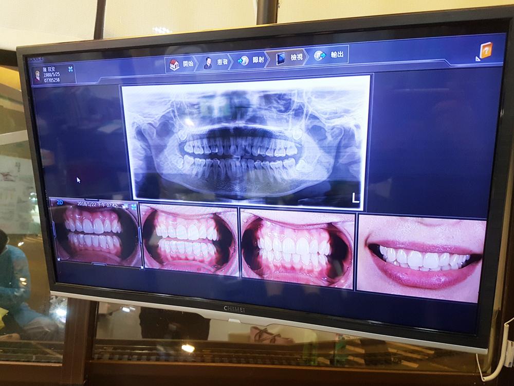 台北士林悅庭牙醫診所-牙齒美白居家美白雷射美白8.jpg