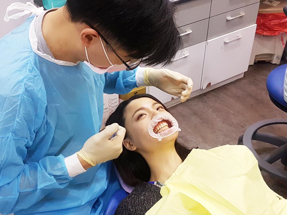 台北士林悅庭牙醫診所-牙齒美白居家美白雷射美白15.jpg