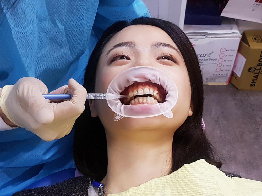 台北士林悅庭牙醫診所-牙齒美白居家美白雷射美白17.jpg