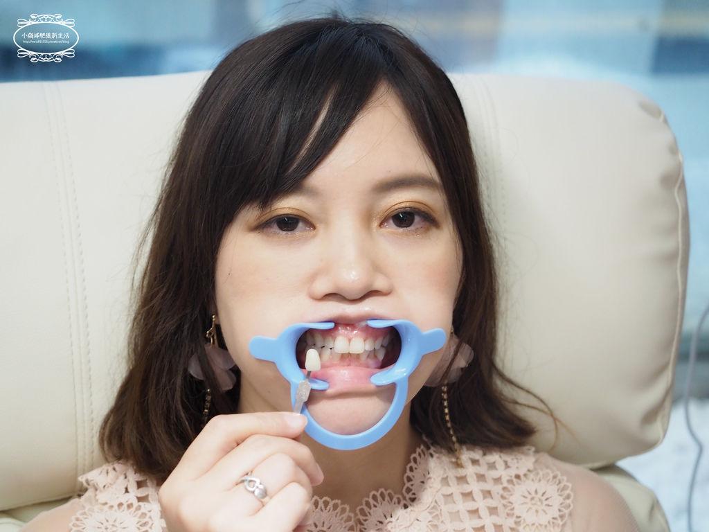 牙齒淨白推薦-桃園美齒推薦