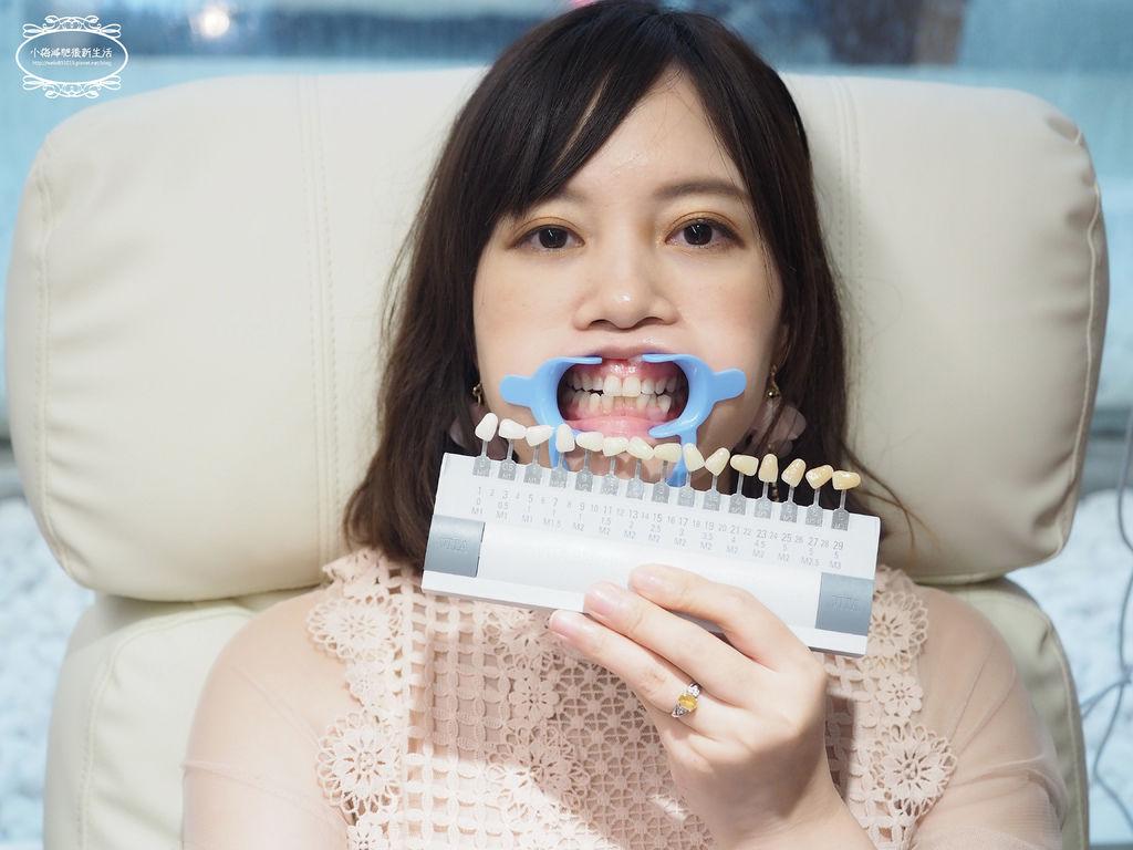 牙齒淨白推薦-桃園牙齒淨白推薦
