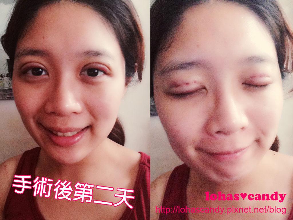 [醫美] 美麗線時尚診所♥BeautyLock深眸術➔自然的雙眼皮讓我更愛自拍惹