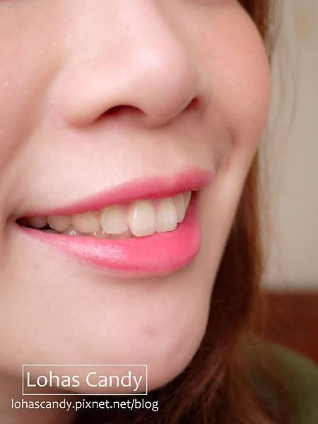 牙套日記-1.jpg