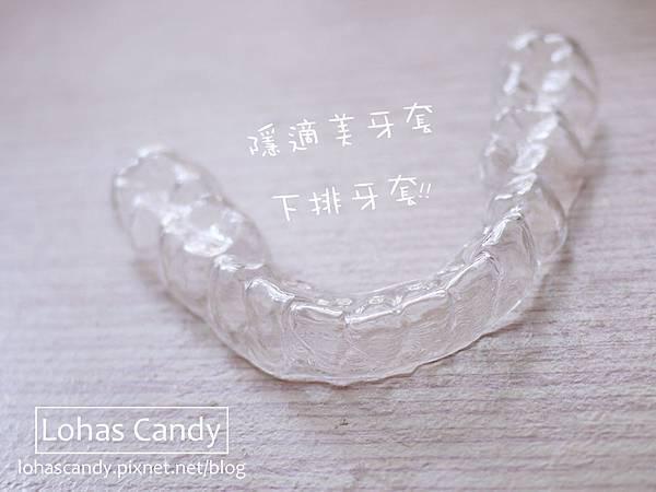 牙套日記-17.jpg