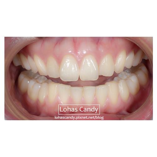 牙套日記-19-1.jpg