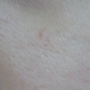 零毛孔超濃植萃美白精華蕾絲拉提面膜-局部特寫01
