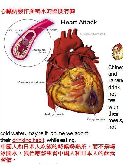 喝水溫度與心臟病的關係1.JPG