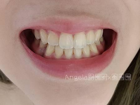 美齒前的牙齒色階-桃園美齒推薦桃園牙齒淨白推薦