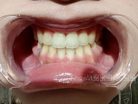 課程前-桃園美齒推薦桃園牙齒淨白推薦
