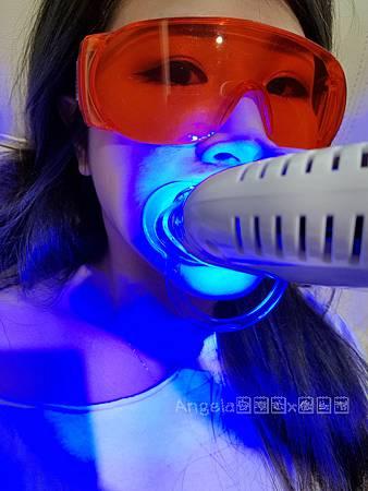 Dr.Min美齒專家-桃園美齒推薦桃園牙齒淨白推薦