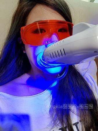 冷光美齒-桃園美齒推薦桃園牙齒淨白推薦