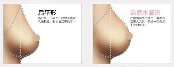 breast_02