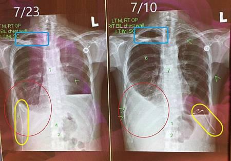 急診X光.jpg