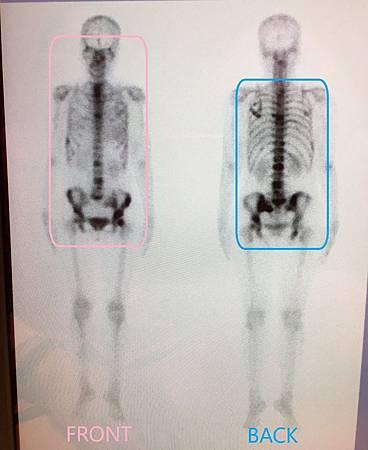 骨骼掃描20160531.jpg