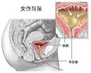 導尿管.jpg