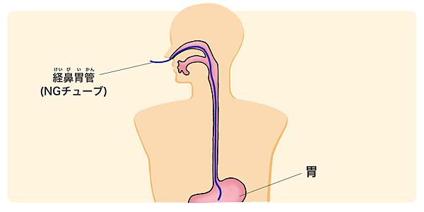 鼻胃管.png