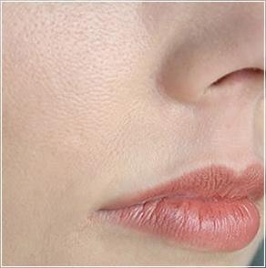 皮膚乾燥毛孔粗大.jpg
