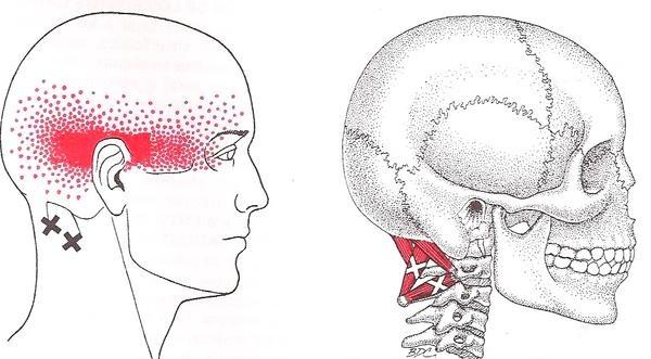 suboccipitales