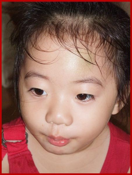 2009.10.15妮妮撞傷了2..jpg