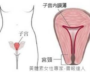 子宮頸內膜薄.jpg
