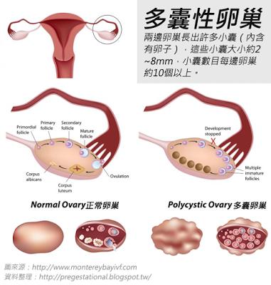 多囊性卵巢會有超過10個以上約2~8mm的小囊