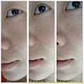 鼻翼泛紅修飾
