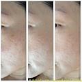 臉頰斑點遮瑕變化