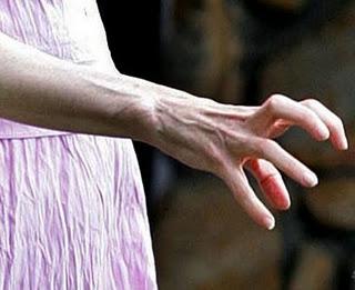 手部的血管凸出.jpg