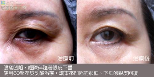 眼皮鬆弛 (3)