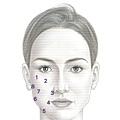 瓜子臉墊下巴拉提凝膠玻尿酸07