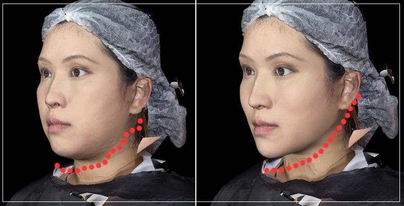 雙層液態拉皮聚左旋乳酸舒顏萃眼袋淚溝法令紋鬆弛07
