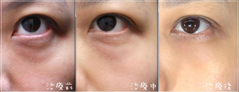 雙層液態拉皮聚左旋乳酸舒顏萃眼袋淚溝法令紋鬆弛06
