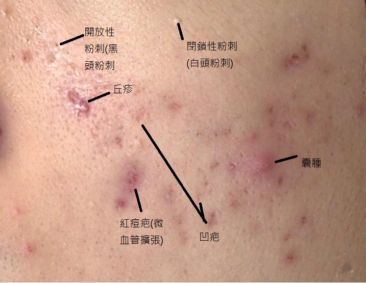 皮膚閉鎖性粉刺痘痘痘疤雀斑曬斑斑點06