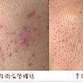皮膚閉鎖性粉刺痘痘痘疤雀斑曬斑斑點05