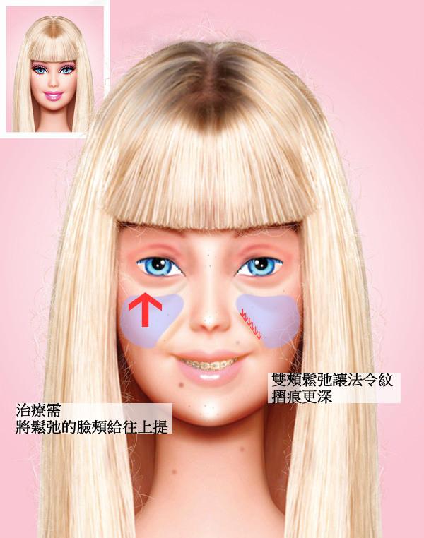 微晶瓷晶亮瓷隆鼻法令紋01