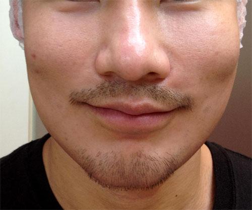 微晶瓷晶亮瓷隆鼻法令紋10
