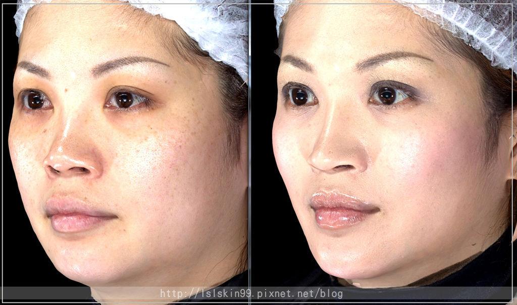 微晶瓷晶亮瓷隆鼻法令紋20