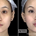 凝膠式玻尿酸豐唇肉毒桿菌瘦小臉20