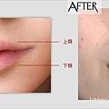 凝膠式玻尿酸豐唇肉毒桿菌瘦小臉24