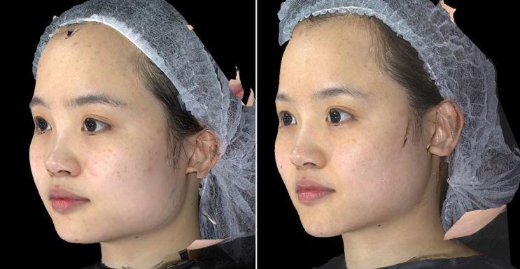 液態拉皮3D聚左旋乳酸舒顏萃杏仁酸換膚10