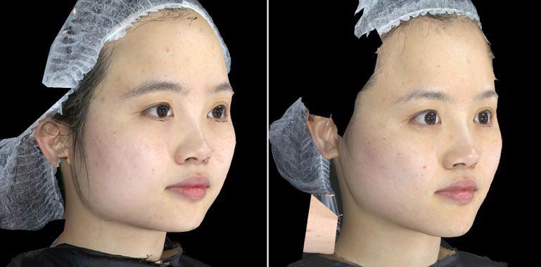 液態拉皮3D聚左旋乳酸舒顏萃杏仁酸換膚12